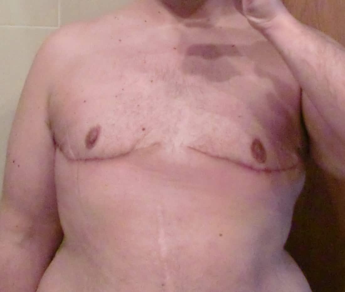 Mastectomía bilateral (y IV)